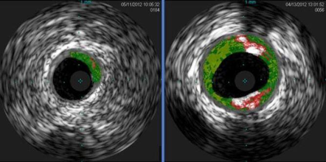 Zdjęcia ultrasonograficzne; z lewej strony niski poziom płytek miażdżycowych u osoby nieuczulonej, po prawej osoba uczulona z wyższym poziomem płytek (Angela Taylor/University of Virginia Health System)